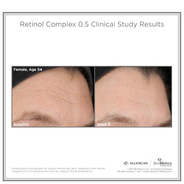 SkinMedica Retinol Complex 0.5 (1oz): Image 31