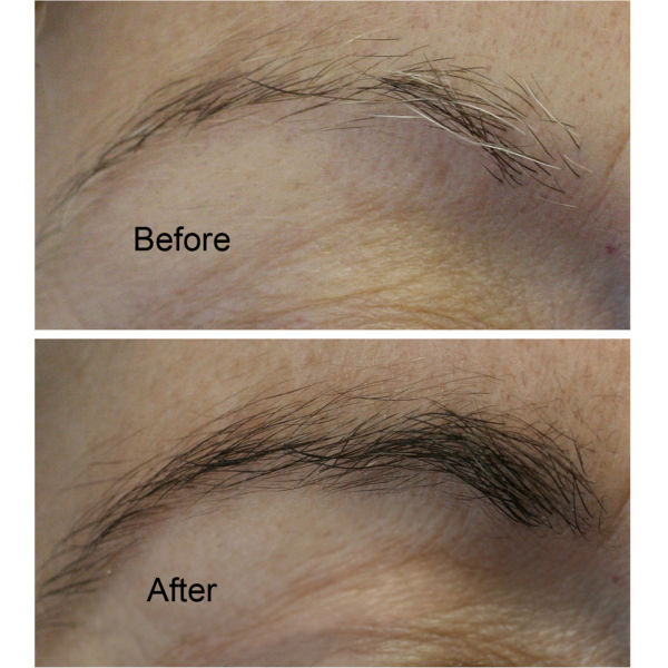 Rapidbrow Eyebrow Enhancing Serum Lookfantastic Free Delivery