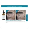SkinCeuticals C E Ferulic Combination Antioxidant Treatment: Image 3