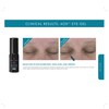 SkinCeuticals AOX Eye Gel: Image 3
