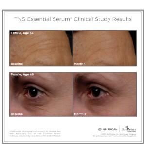 SkinMedica TNS Essential Serum: Image 4