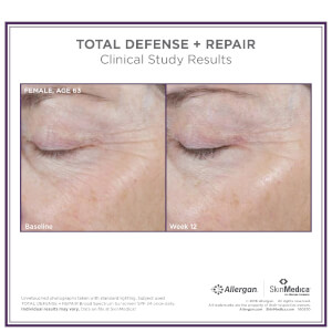 SkinMedica Total Defense and Repair SPF 50: Image 4