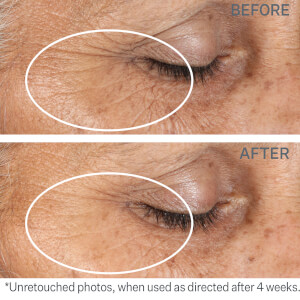 StriVectin Intensive Eye Concentrate for Wrinkles: Image 3