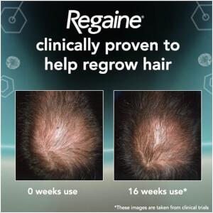 Regaine for Men Extra Strength Hair Regrowth Foam 73ml: Image 3