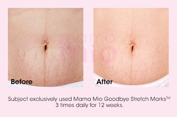 Goodbye Stretch Marks Before and After