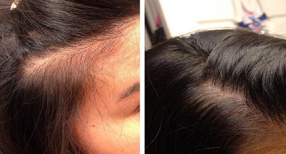 Grow Gorgeous Hair Growth Serum Results