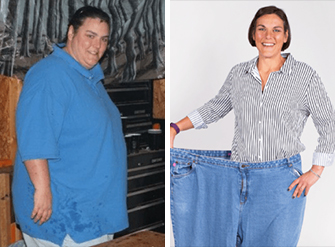 Before and after photos of a 41 year old woman who lost 188 pounds using IdealShape meal replacement shakes.