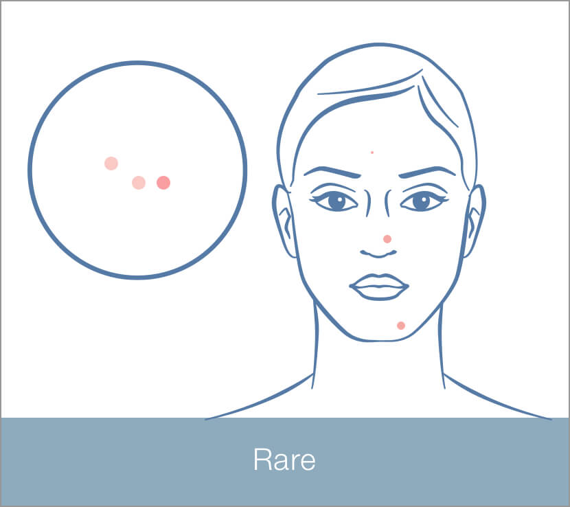 Rare Blemishes/Breakouts