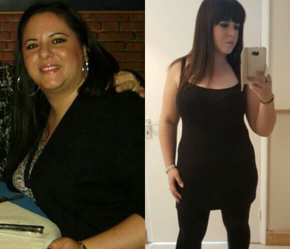 Exante Weight Loss Transformation