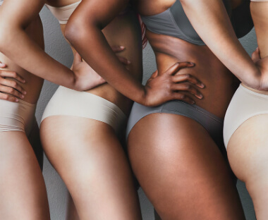How to prevent and how to get rid of stretch marks